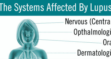 Systems Affected by Lupus
