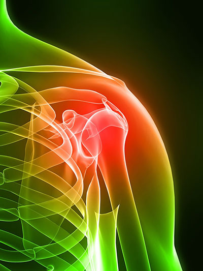 shoulder-pain-400-web-72dpi