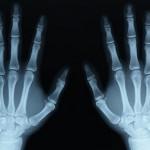 xray-hands-400x400-72-web